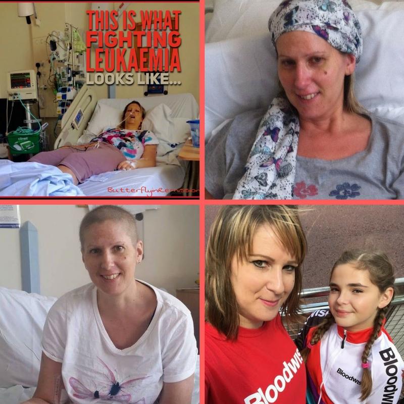 AML Anna Mamwell Bloodwise Leukaemia acute myeloid